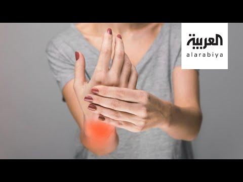 شاهد التهاب المفاصل الروماتويدي يستهدف النساء