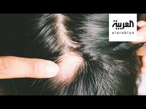 شاهد القلق والتوتر قد يؤديان لظهور ثعلبة الشعر