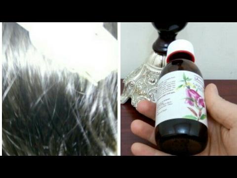 الفيديو وصفة مذهلة للقضاء على الشعر الأبيض بشكل نهائي