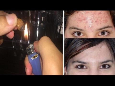 شاهد وصفة اللوز المحروق أسرع تقنية لعلاج حبوب الوجه