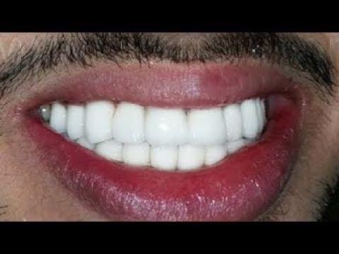 تبيض الأسنان وإزالة الجير والإصفرار في دقيقتين