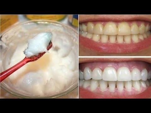 شاهد: وصفة مٌجرّبة تقضي على اصفرار الأسنان فورًا