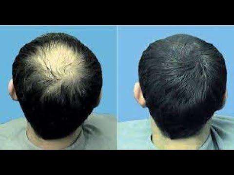 طريقة فعّالة لوقف تساقط الشعر ولنموه
