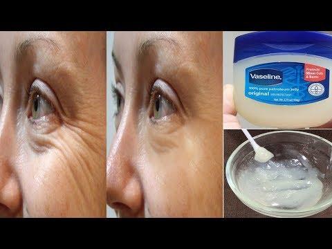 طرق مميزة للتخلص من  تجاعيد العين