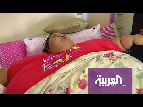 إيمان تزن نصف طن وتطالب بخفض مائة كيلوغرام قبل علاجها